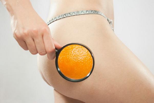 10 Fakten über Cellulite